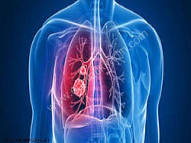 Akciğer Absesi