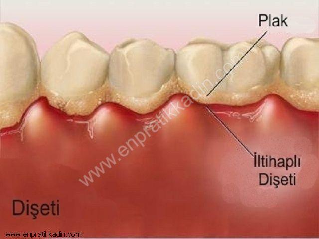 Diş Eti Hastalıklarının Nedenleri