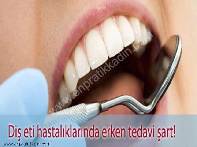 İlerlemiş Diş Eti Hastalıkları Tedavisi